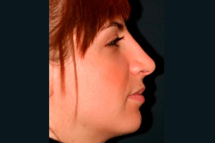 Efter næseoperation