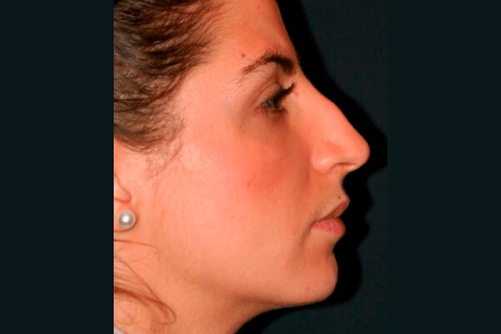 Før næseoperation