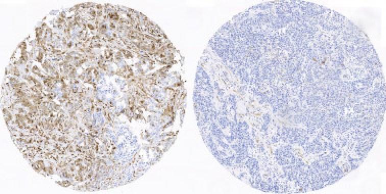 <p>Tejido mamario de unapaciente con recaída y que presenta los marcadores de fosforilación activos(izquierda; color marrón intenso), frente al tejido procedente deuna paciente sin recaíday que no presenta estos marcadores activos (derecha). / CNIO</p>