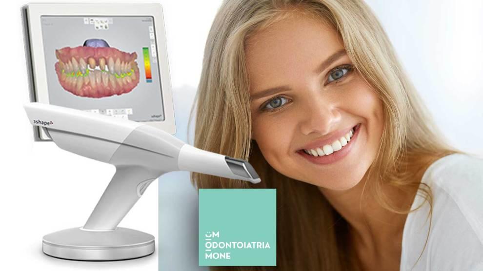 Impronta dentale con scanner
