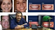 faccette dentali Avellino