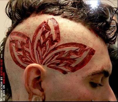 scar tattoo