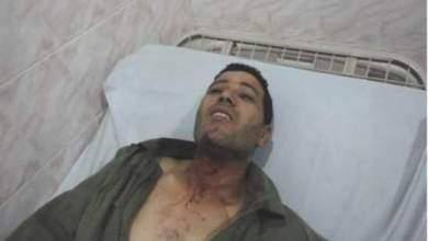 Photo of بالصور: جانب من حصيلة انفصال البوليساريو العنيف بالسمارة