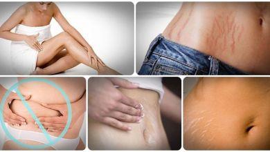 Photo of كيفية التخلص من علامات تمدد الجلد بشكل طبيعي وبسرعة