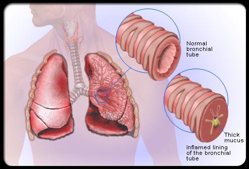 Ilustrasi bronkitis