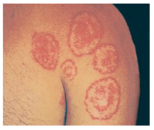 Dermatofitosis / Tinea atau Jamur