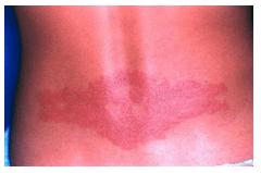 Dermatitis Kontak Alergik DKA