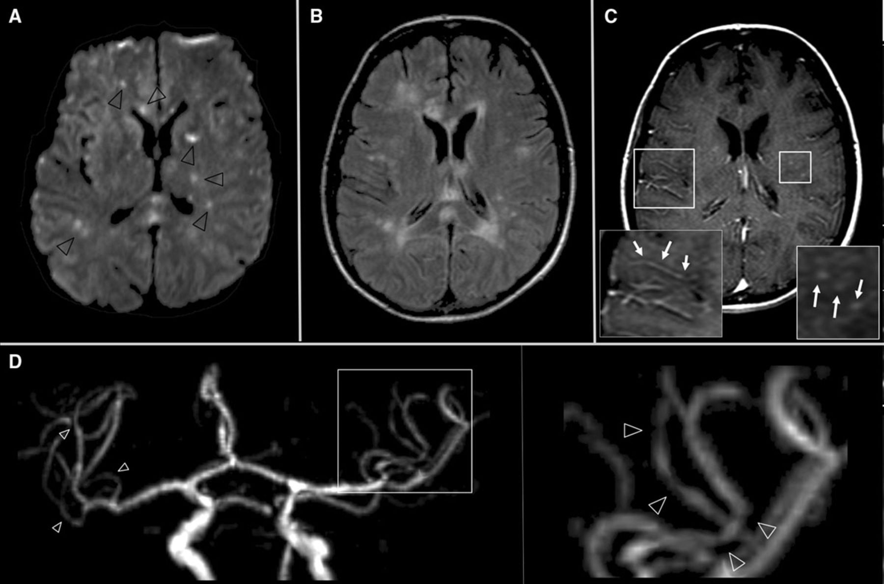 Primary Angiitis Of The Central Nervous System