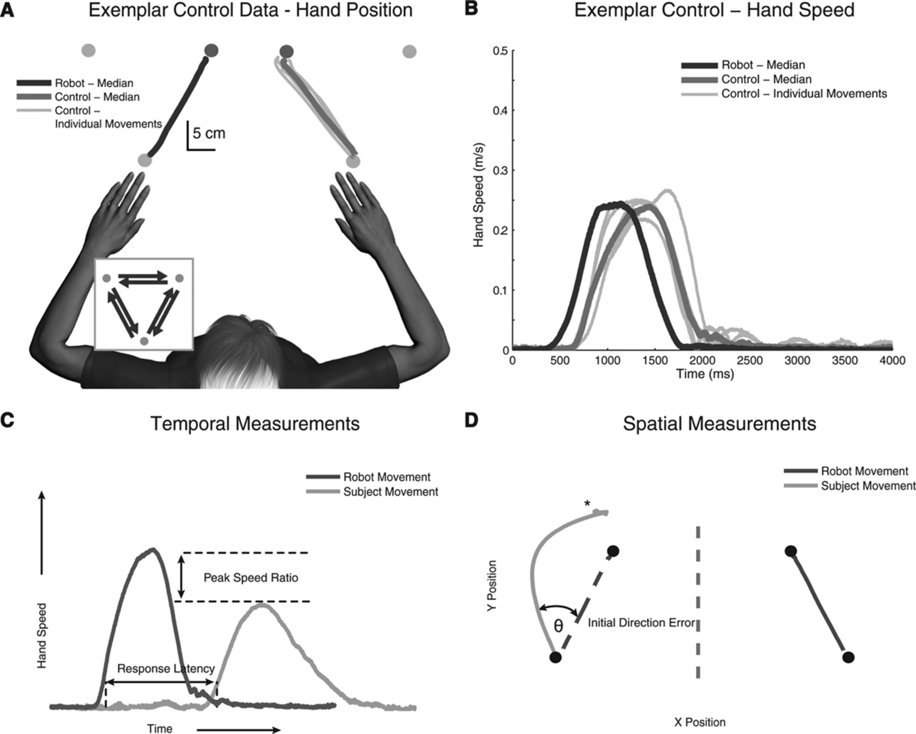 Robotic Identification Of Kinesthetic Deficits After