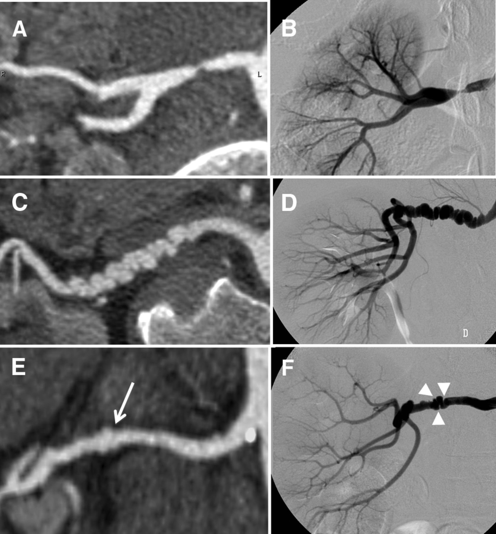Association Between 2 Angiographic Subtypes Of Renal