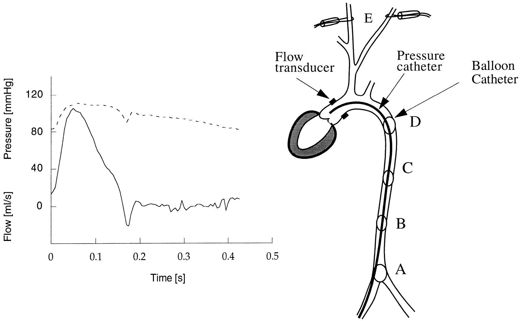 Determinants Of Pulse Pressure