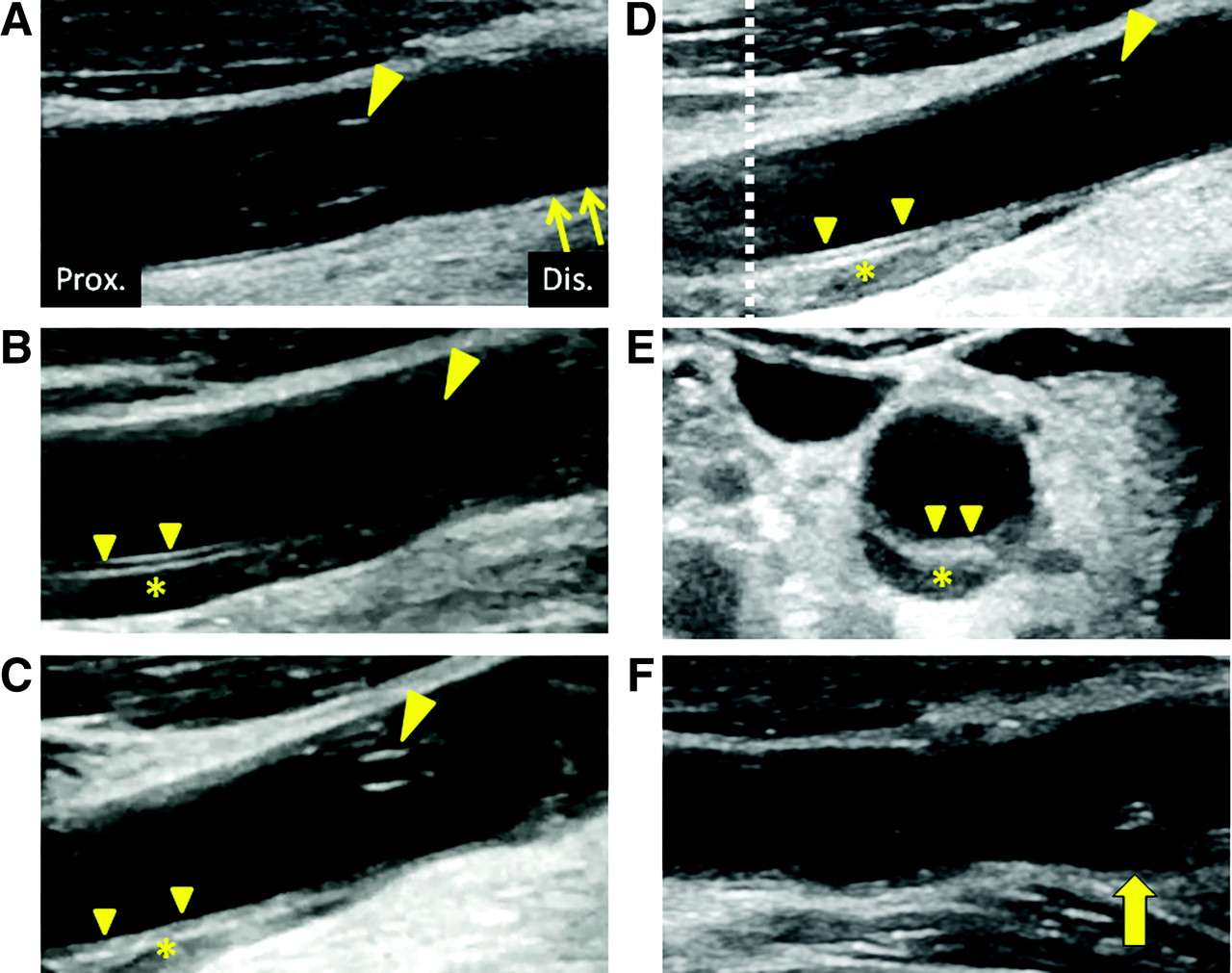 Common Carotid Artery Dissection Caused By A Frontal