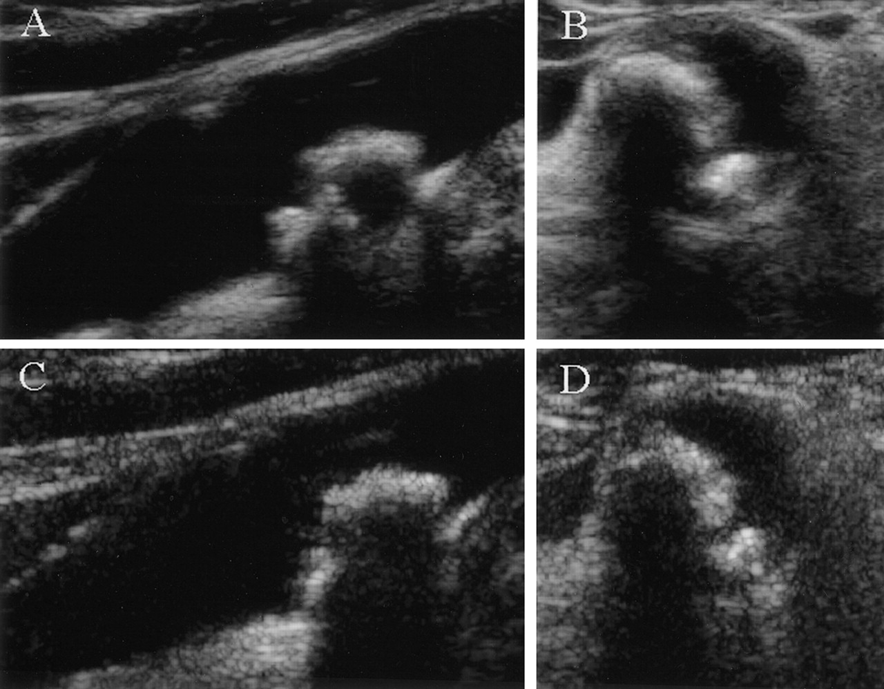 Characterization Of Carotid Artery Plaques Using Real Time