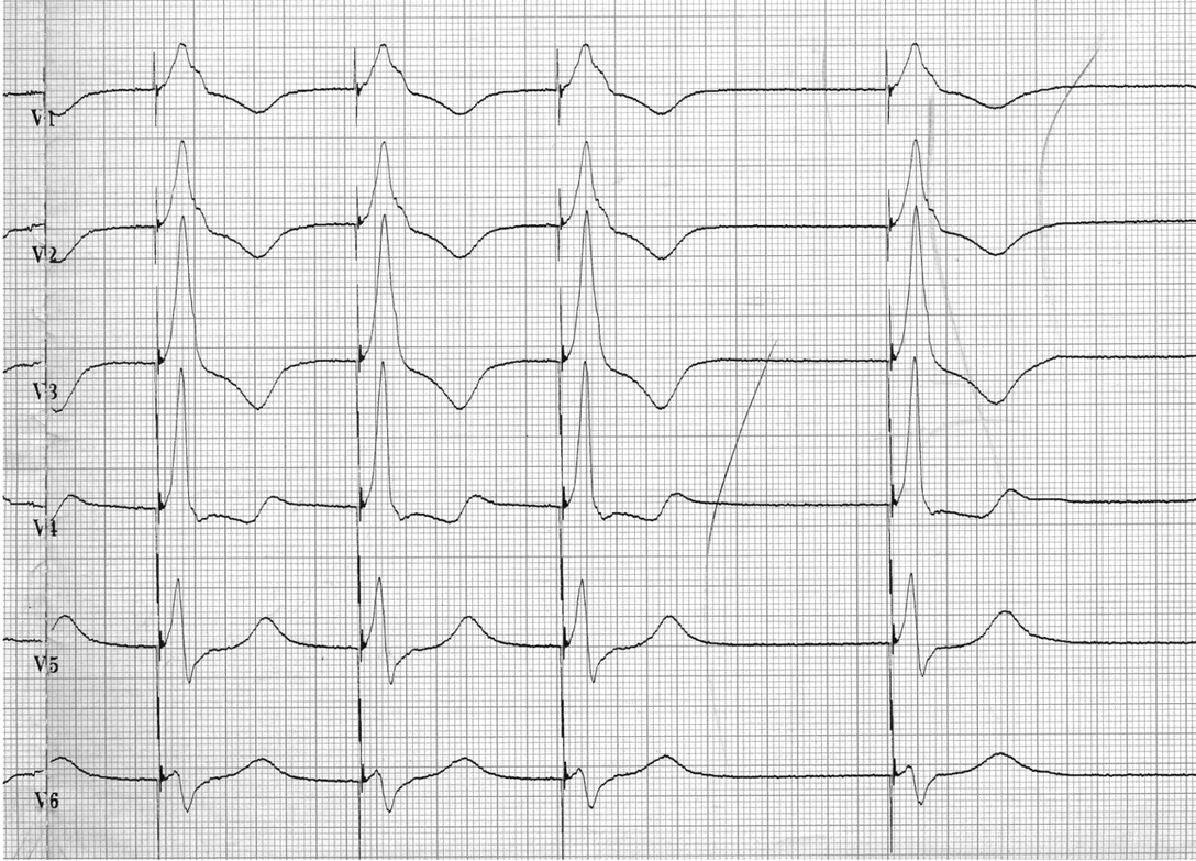 Aortic Endocarditis Caused By Inadvertent Left Ventricular