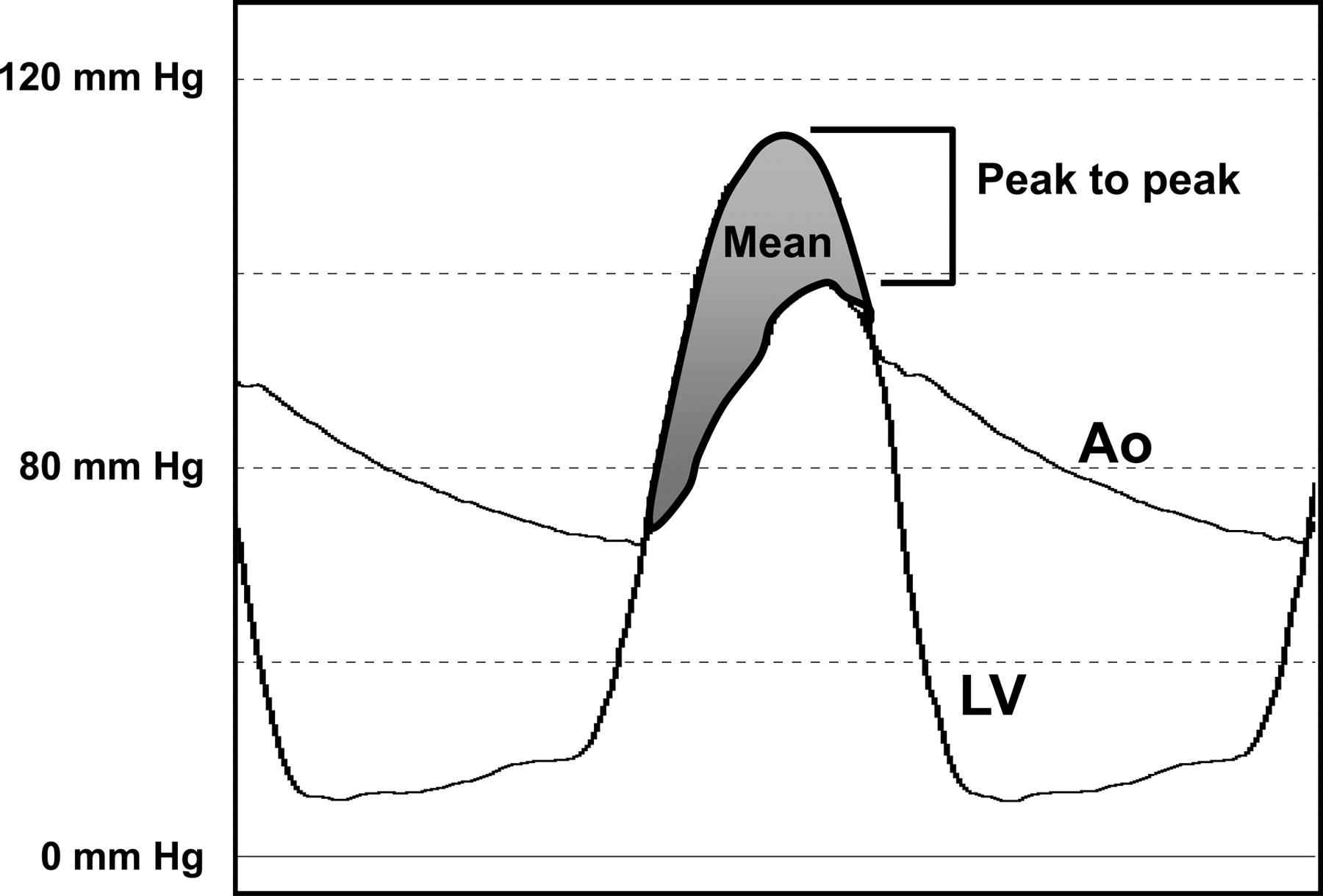 Hemodynamics In The Cardiac Catheterization Laboratory Of