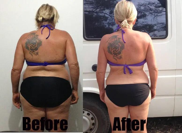 4 Phase Fat Elimination