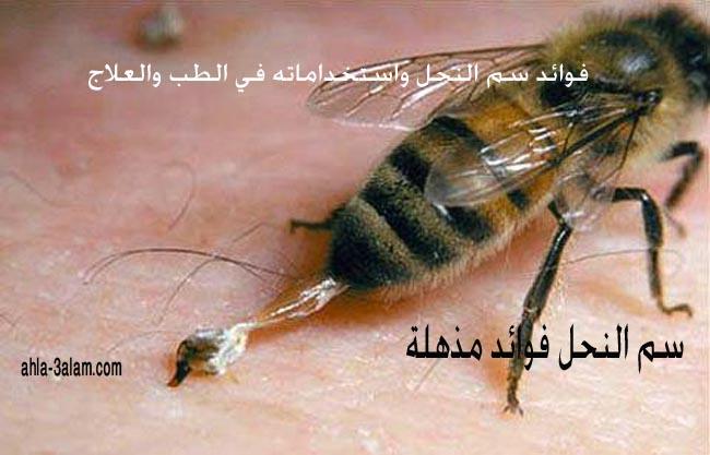 فوائد سم النحل واستخداماته في الطب والعلاج