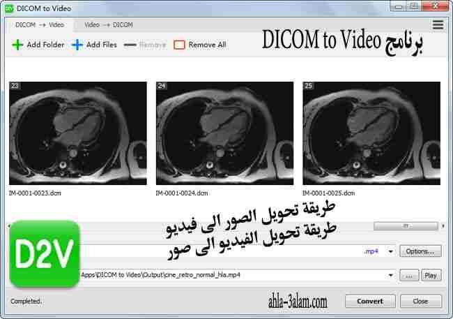طريقة تحويل الصور الى فيديو والعكس بسهولة برنامج DICOM to Video