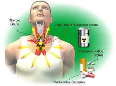 Radioactive Iodine Therapy
