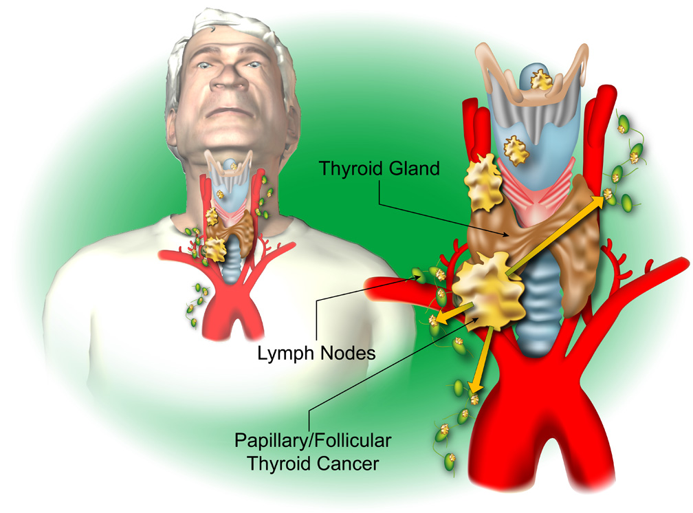 Thyroid c
