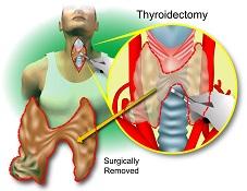 Thyroidectomy