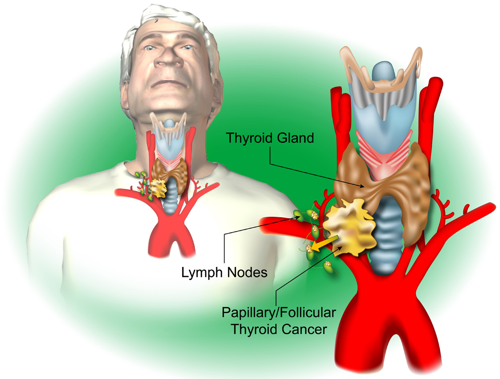 Thyroid x