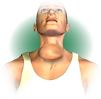 Swelling in the neck