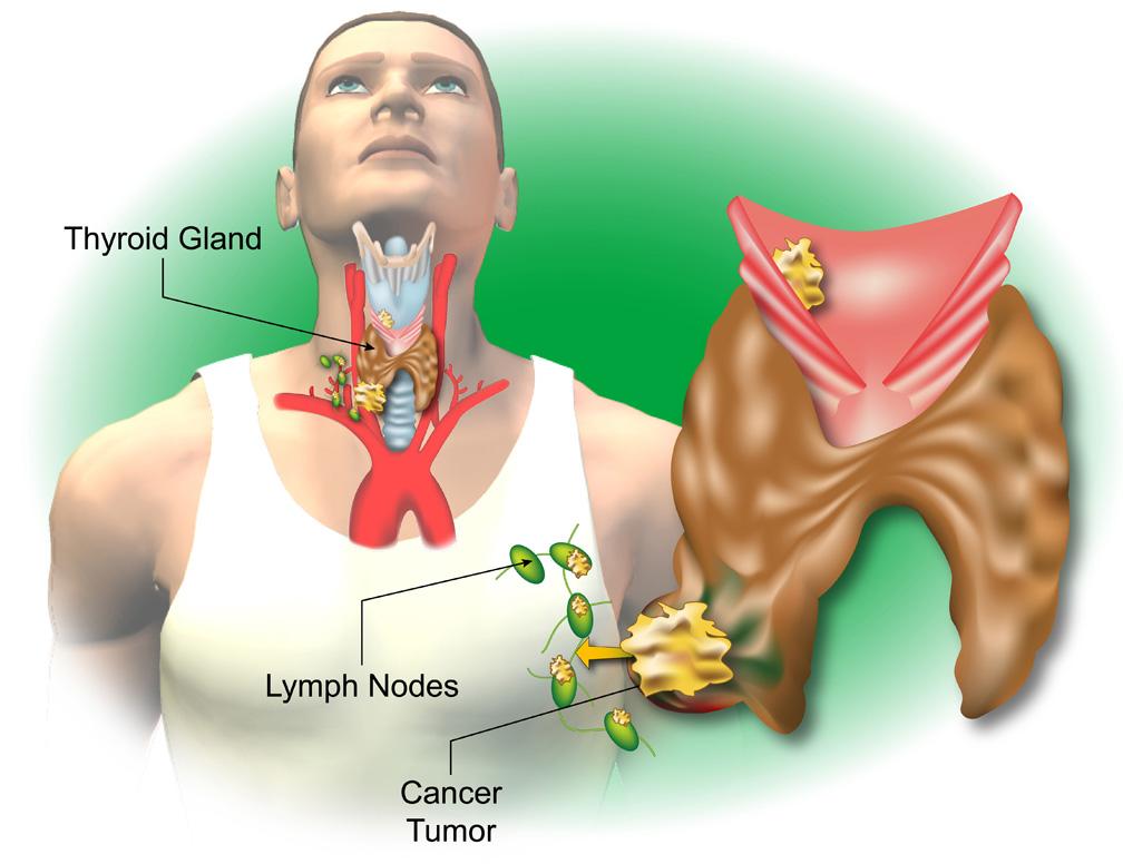 Thyroid S1
