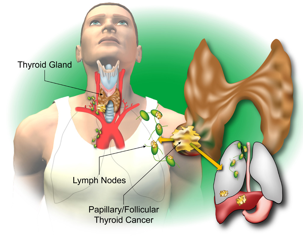 Understanding Thyroid Cancer American Head Neck Society