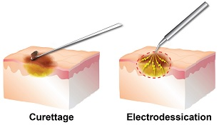 Electrodessication and curettage