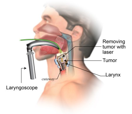 Endoscopic laser surgery