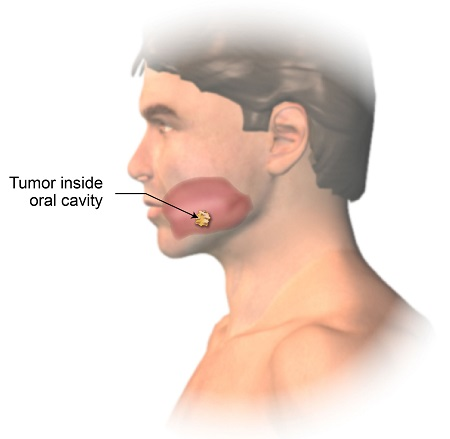 Lip and Oral Cavity Cancer