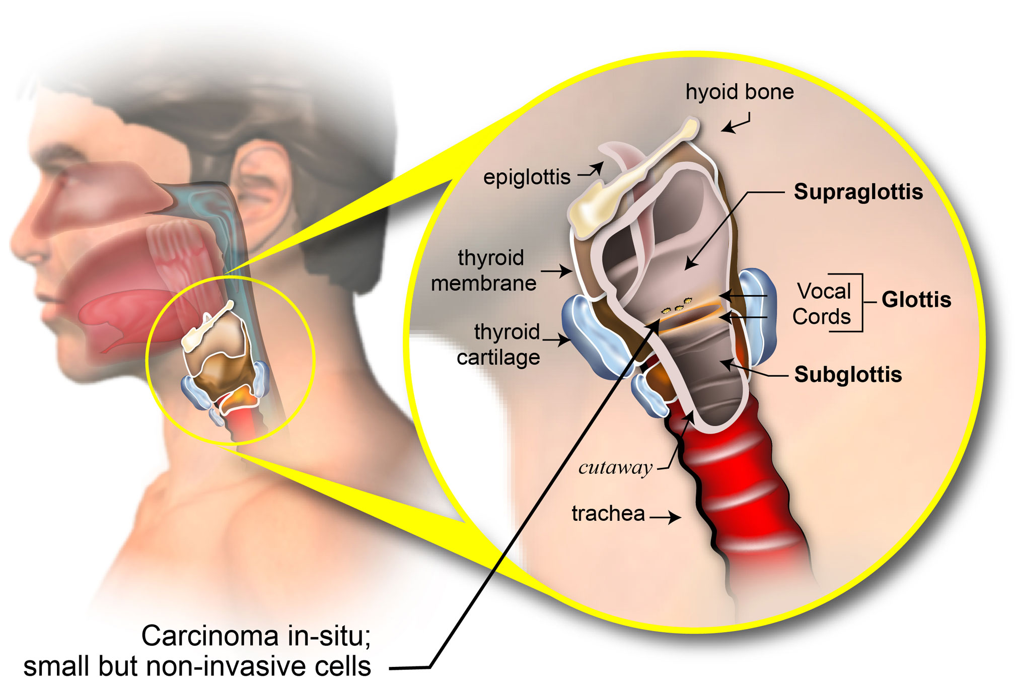 Staging of Laryngeal Cancer - American Head & Neck Society