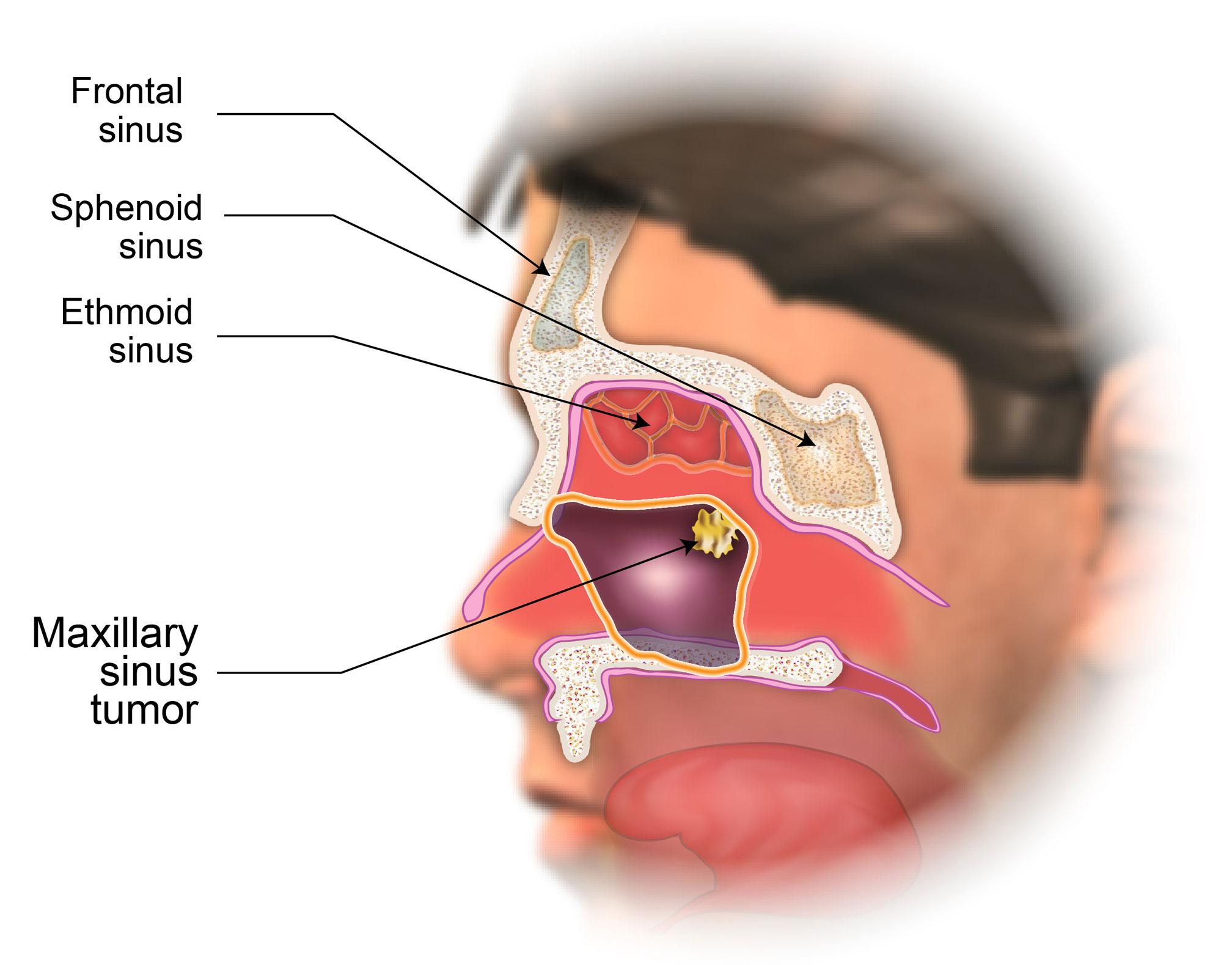 Diagram Of Maxillary Sinus - Wiring Diagram Services •