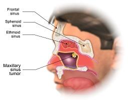 Maxillary Sinus