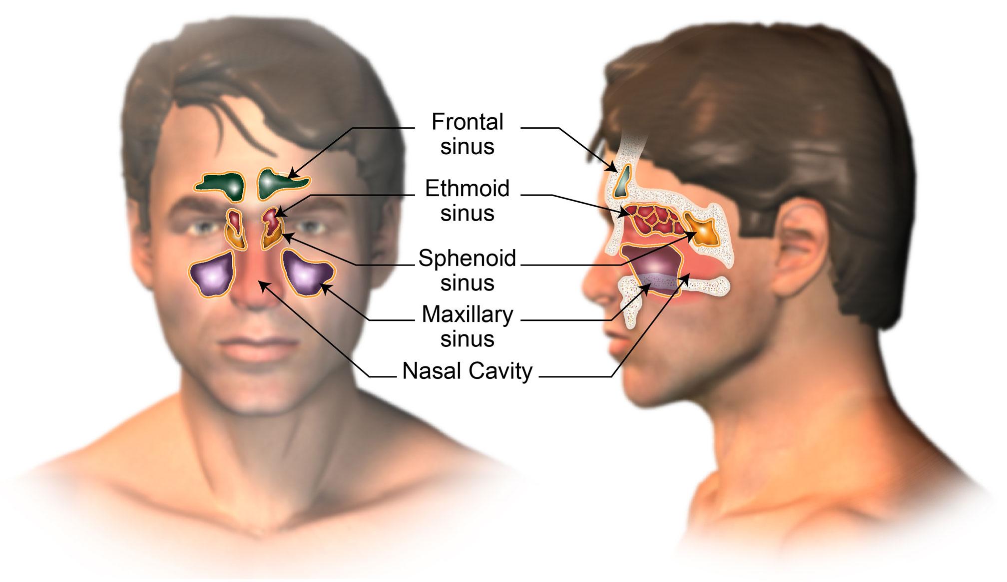 Understanding Nasal Cavity And Paranasal Sinus Cancer American
