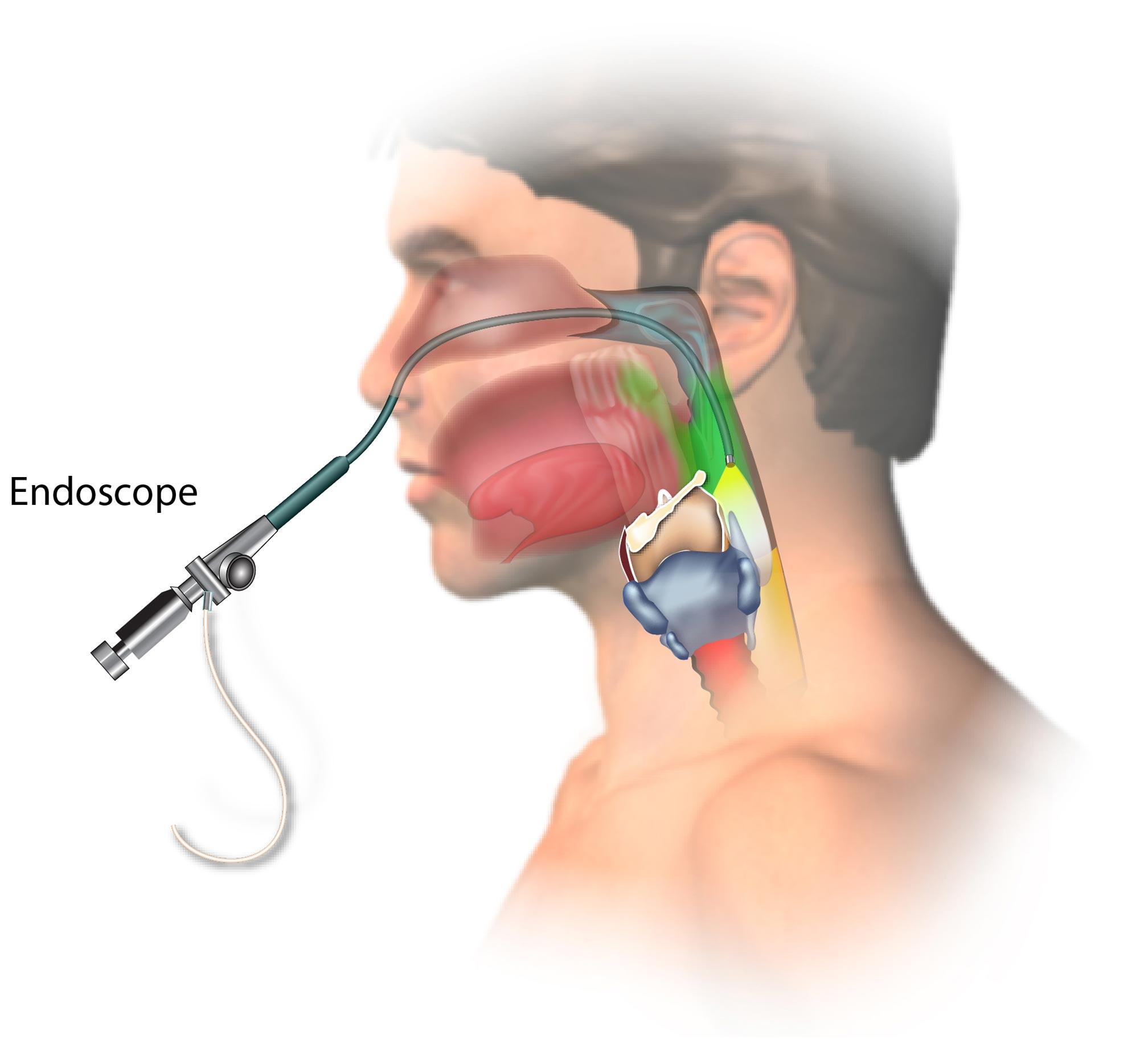Upper Endoscopy