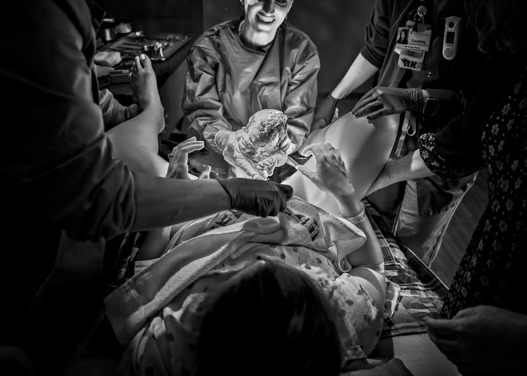 black and white delivery room live birth photography