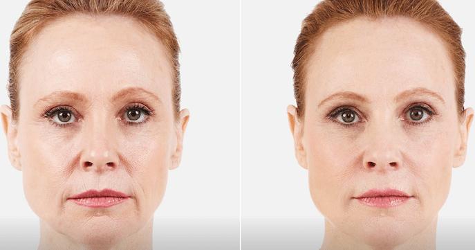 Facial Fillers and botox at AH Smiles