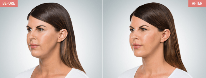 Kybella treatment at AH Smiles in Arlington Heights IL