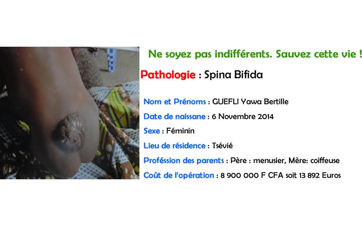 GUEFLI Yawa Bertille (spina)