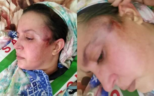 الناشطة الحقوقية الصحراوية سلطانة سيدابرهيم خيا واختها الواعرة تتعرضان لإعتداء جسدي بمدينة بوجدور المحتلة
