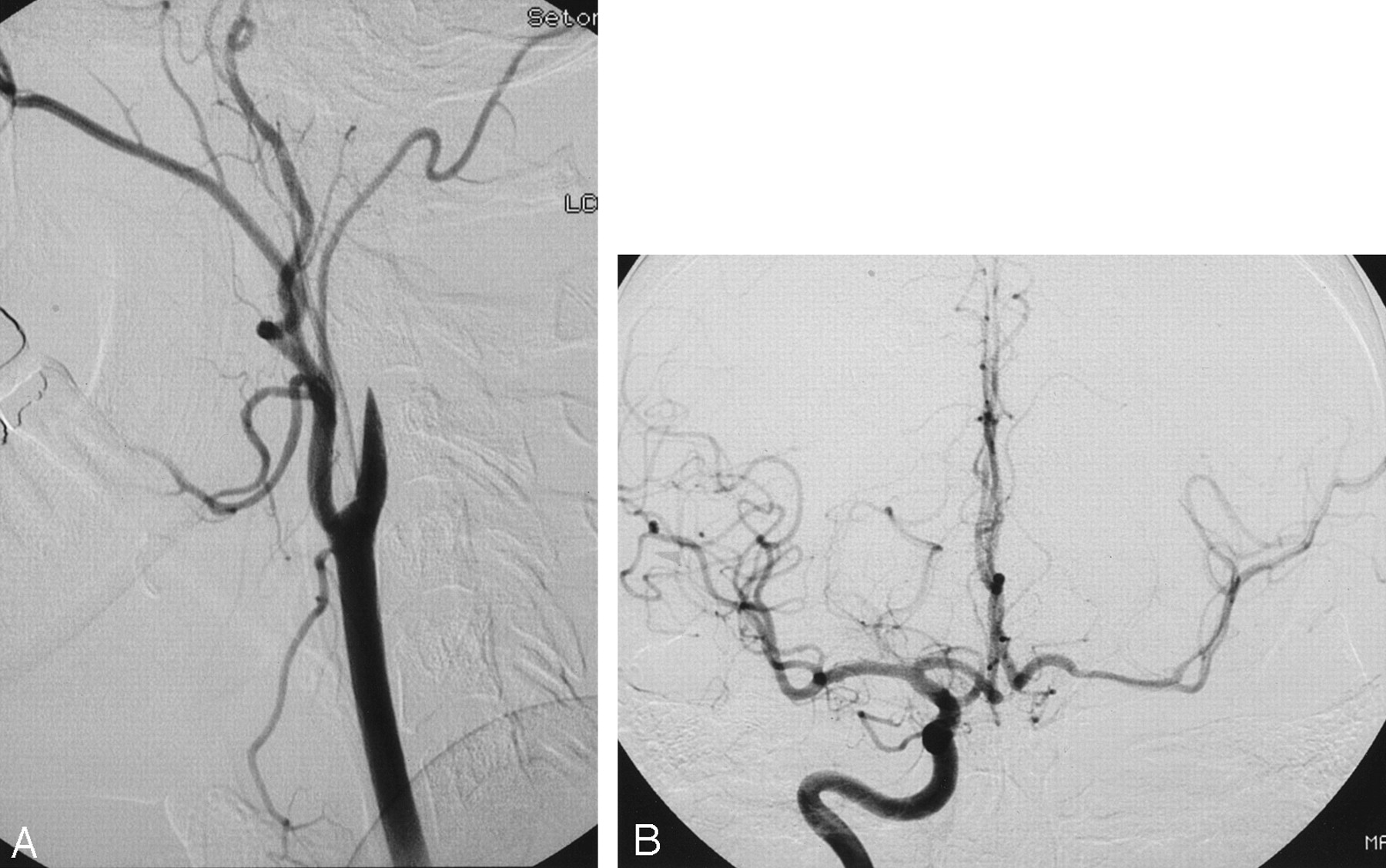 Stent Coil Treatment Of A Distal Internal Carotid Artery