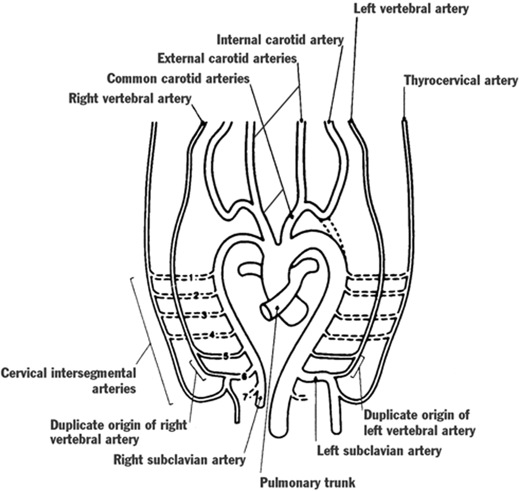 Mr Angiographic Demonstration Of Bilateral Duplication Of