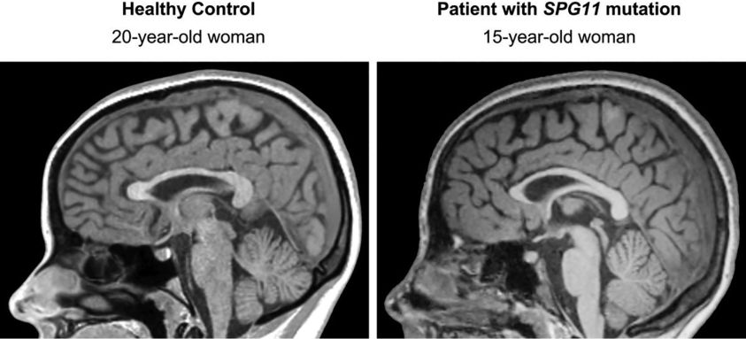 """""""Ears of the Lynx"""" MRI Sign Is Associated with SPG11 and ..."""