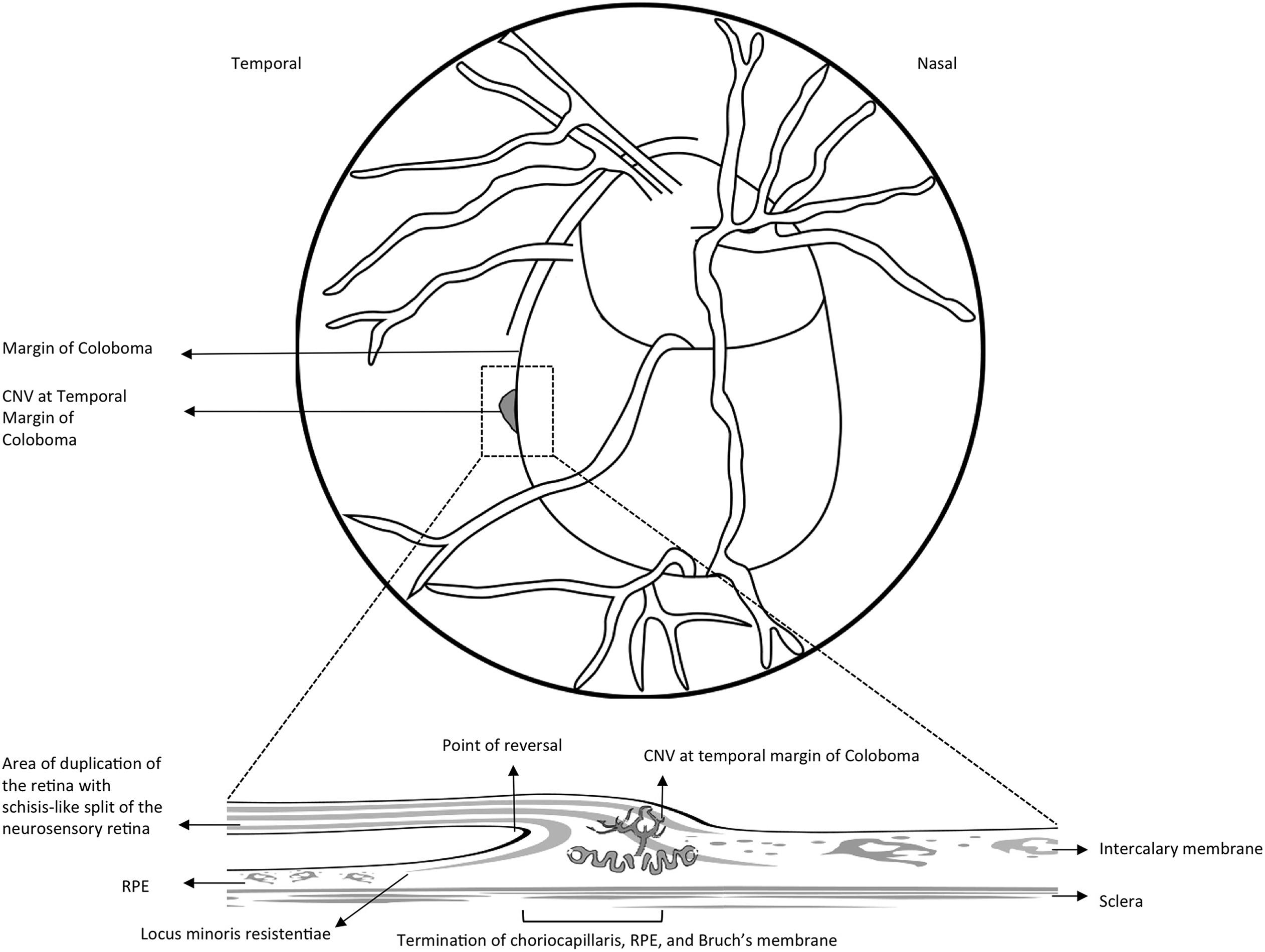 Association Of Pediatric Choroidal Neovascular Membranes