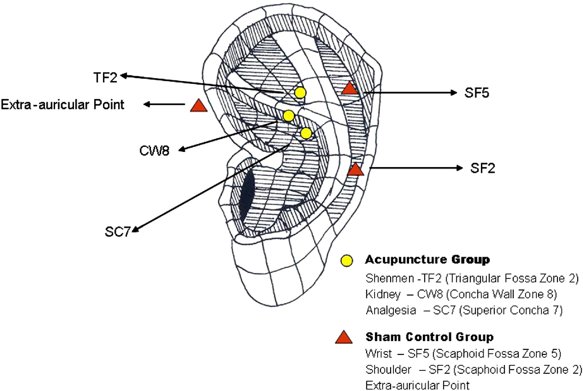 Auricular Acupuncture As A Treatment For Pregnant Women