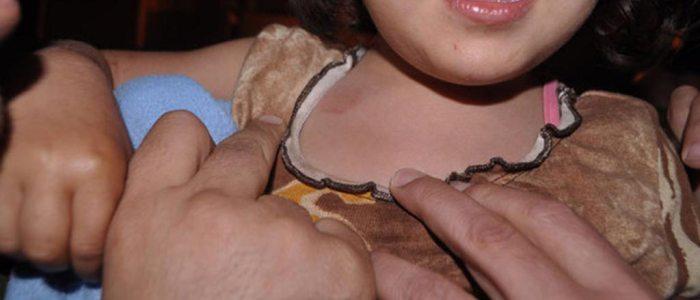 ردود فعل غاضبة في مصر بعد حادثة إغتصاب طفلة