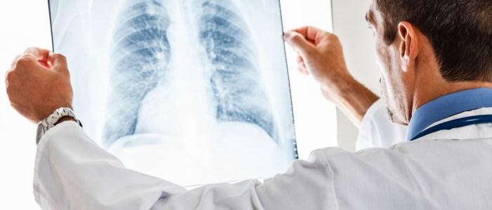 الأسباب التي تؤدي لألتهاب الرئة وعلاجها