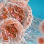 """إعادة تصنيف السرطان """"يزيد فعّالية وسائل علاجه"""""""